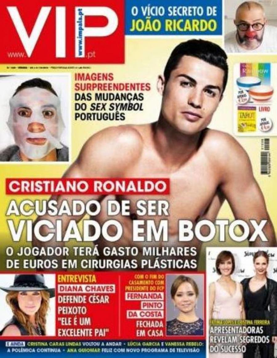 """Actualidad Actualidad Cristiano Ronaldo se obsesiona con el bótox y se gasta """"miles de euros"""""""